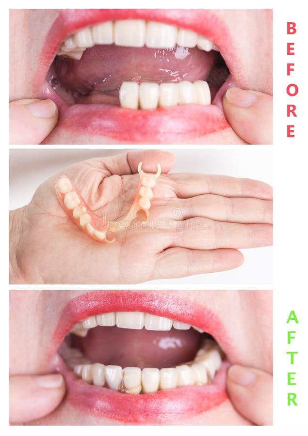 Tand- rehabilitering med övre och lägre protes, före och efter behandling royaltyfri foto