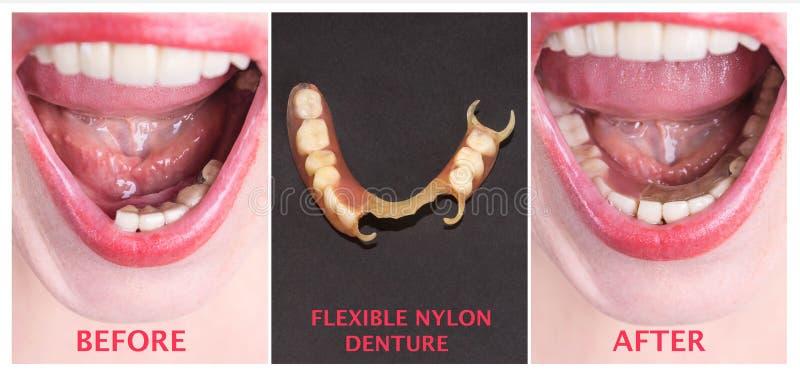 Tand- rehabilitering med övre och lägre protes, före och efter behandling arkivfoton