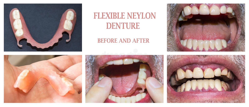 Tand- rehabilitering med övre och lägre protes, före och efter behandling royaltyfri bild