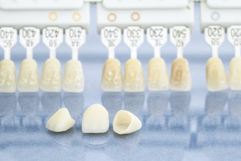 Tand- sjukvård royaltyfri bild
