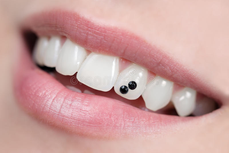 tand- smycken royaltyfria foton
