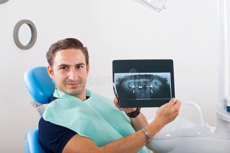 tand- stråle x arkivfoto