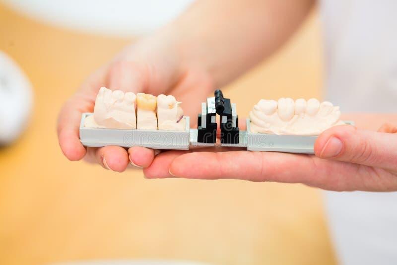 Tand- tekniker som kontrollerar tandprotesen arkivfoto
