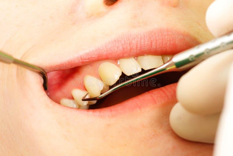tand- undersökning royaltyfri bild