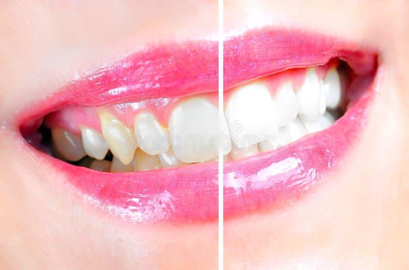 Tand- whitening