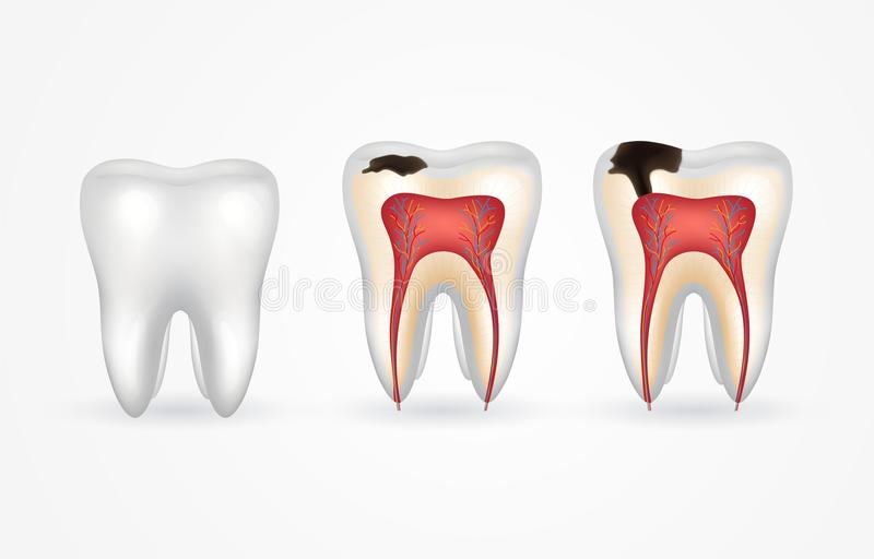 Tandbederf en gezonde tand Oppervlakkig bederf; diep bederf; email en dentinebederf; periodontitis royalty-vrije illustratie