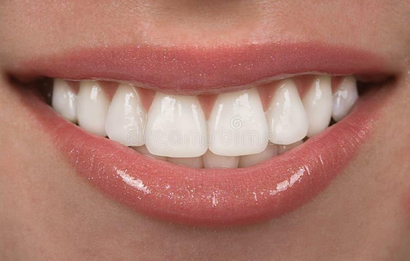 Tanden stock afbeelding