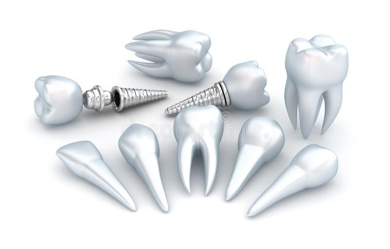 Tanden en implant, Tandconcept royalty-vrije illustratie