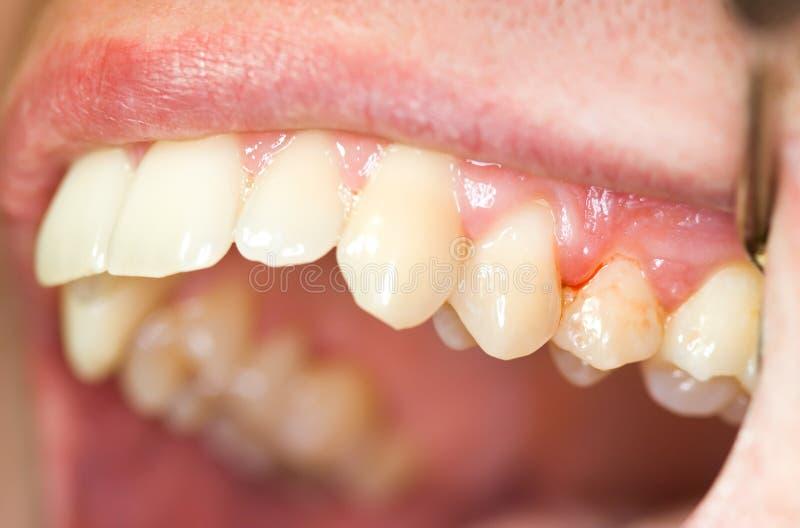 Tanden en tandvleesontsteking stock foto's