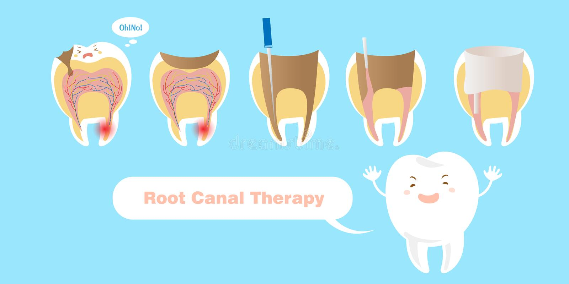 Tanden med rotar kanalterapi royaltyfri illustrationer
