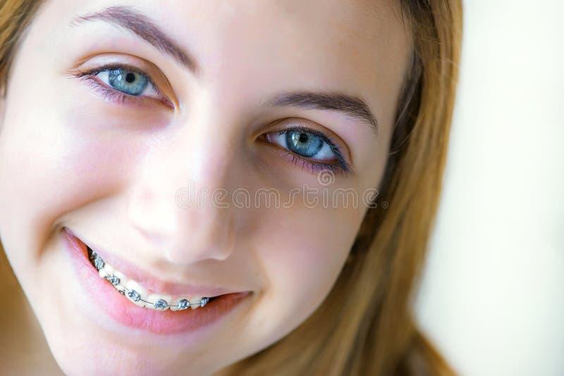 Tanden met steunen royalty-vrije stock foto