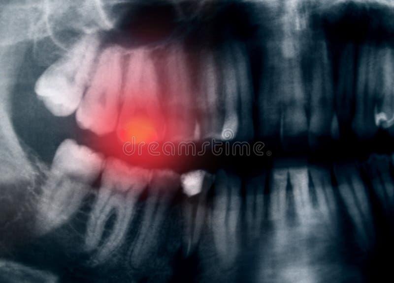 Tandenpijn royalty-vrije stock afbeeldingen