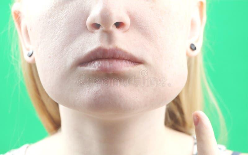 Tandenprobleem Abces op het tandvlees, stroom en het zwellen van de wang Close-up van Mooi Droevig Meisje die aan Sterke Tandpijn stock foto's