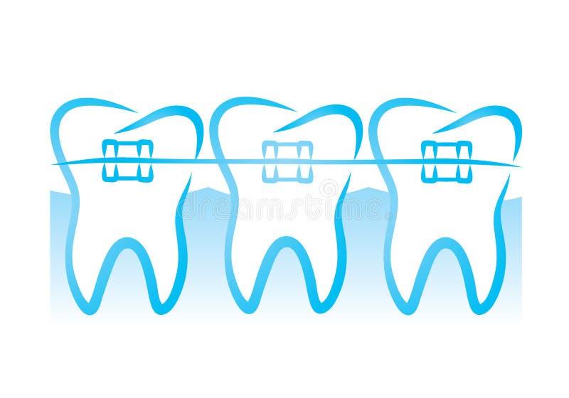 Tandensteunen stock illustratie