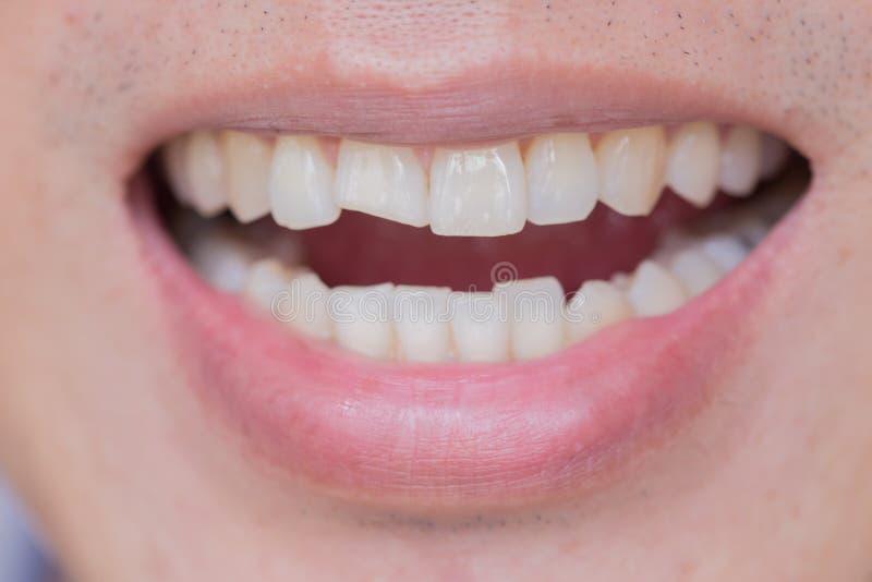 Tandenverwondingen of Tanden die in Mannetje breken Trauma en Zenuwschade van verwonde tand stock afbeelding