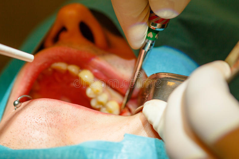 Tandextraktion, utan att använda kirurgisk tång arkivbilder