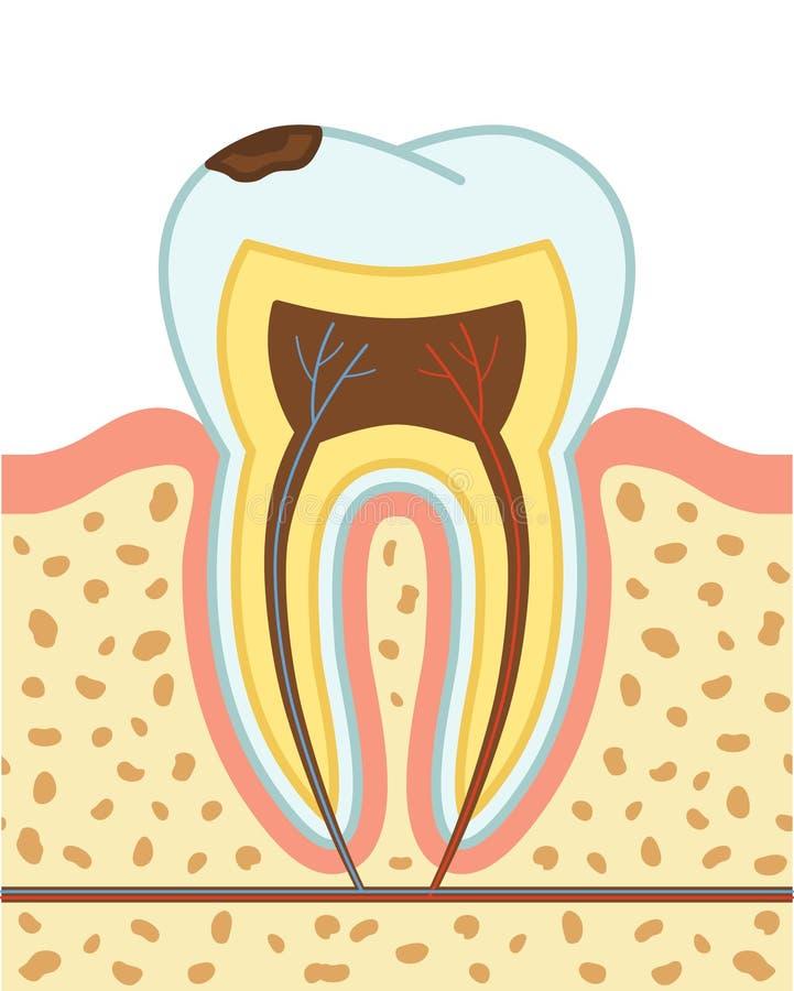 Tandförfall stock illustrationer