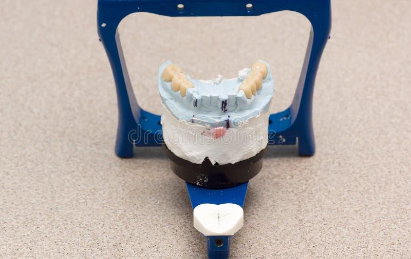 Tandgewricht met gepleisterde tandmodellen stock fotografie
