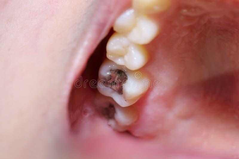 Tandhål med behandlingen arkivbild