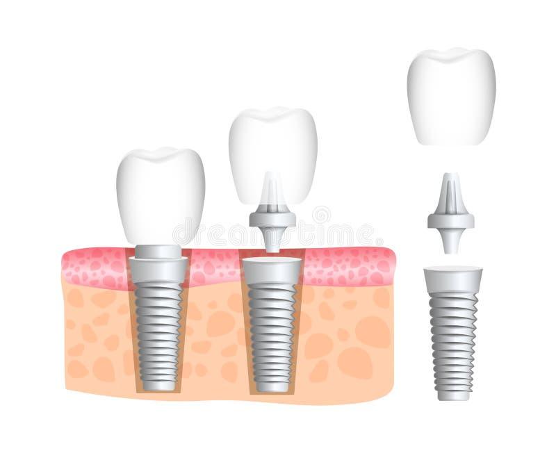 tandheelkunde tandheelkunde Realistische tandimplant structuur met alle delen: kroon, steunpunt, schroef Inplanting van menselijk stock illustratie