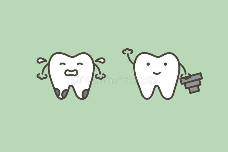Tandimplant, de nieuwe wortel van de tandenverandering aan vriend royalty-vrije illustratie