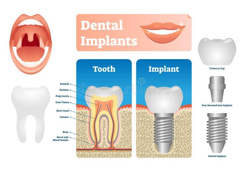 Tandimplants vectorillustratie Geëtiketteerde medische regeling met tand GLB royalty-vrije illustratie