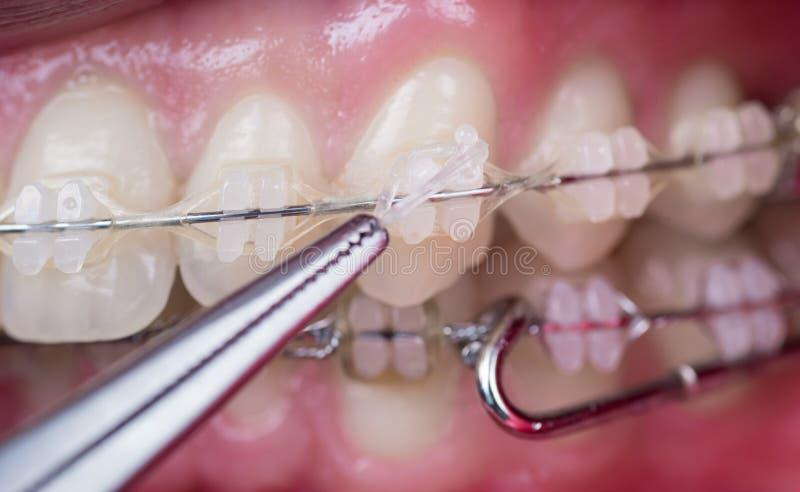 Tandläkare som behandlar tänder med keramiska konsoler, genom att använda myggan på det tand- kontoret Makro som skjutas av tände arkivfoton