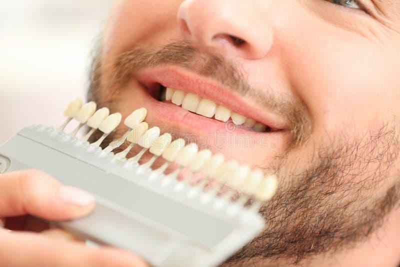 Tandläkare som kontrollerar och väljer färg av tänder för ` s för ung man, closeup arkivbilder