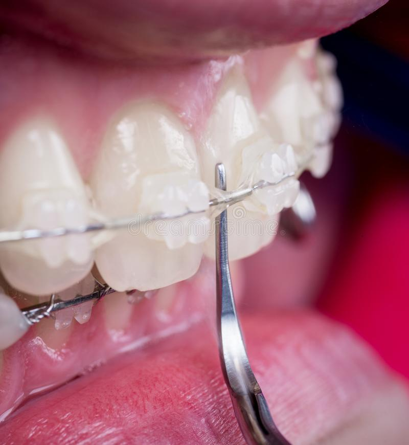 Tandläkare som kontrollerar upp tänder med keramiska konsoler genom att använda sonden på det tand- kontoret Makro som skjutas av royaltyfri bild
