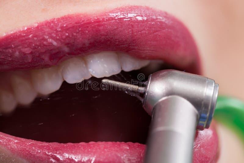 Tandläkare som kurerar en kvinnlig patient royaltyfria bilder