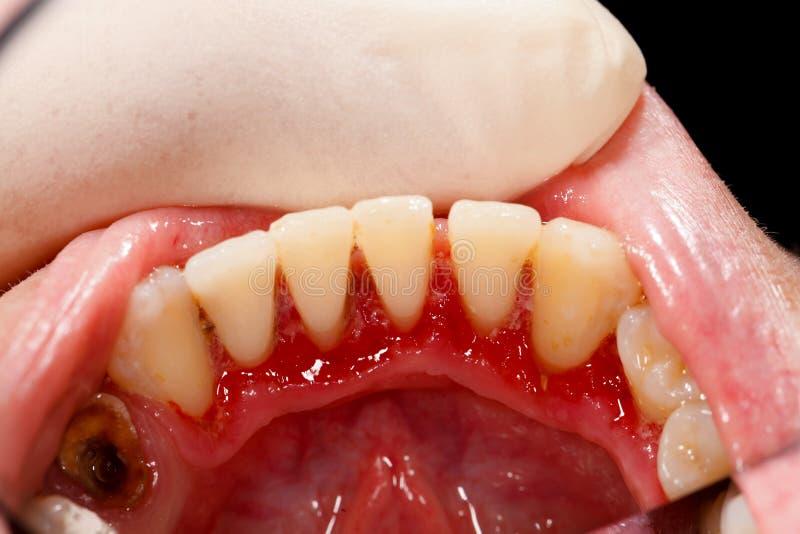 Tandläkare som undersöker den sjuka munnen royaltyfri foto