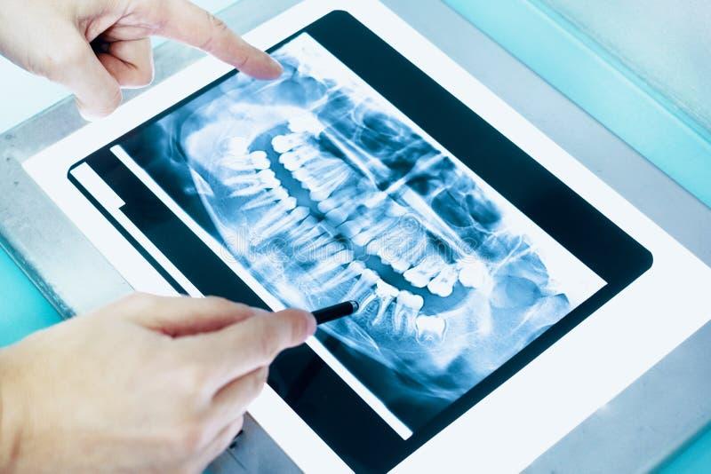 Tandläkare som undersöker den tand- röntgenstrålen i hans kliniklabb arkivfoto