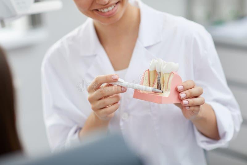 TandläkareExplaining Tooth Implantation process fotografering för bildbyråer
