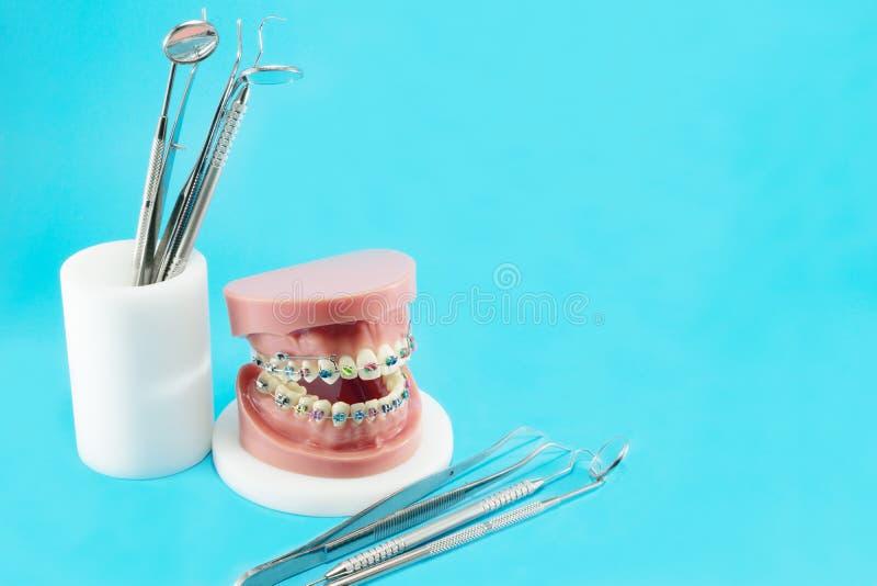 Tandläkarehjälpmedel och orthodontic modell royaltyfria bilder