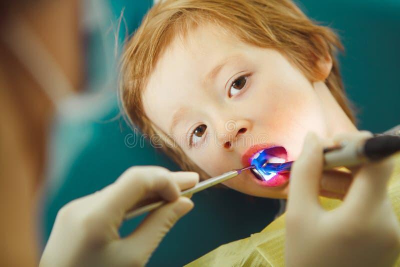 Tandläkaren applicerar ultraviolett ljus till tänder för barn` s efter kariesborttagning arkivbilder
