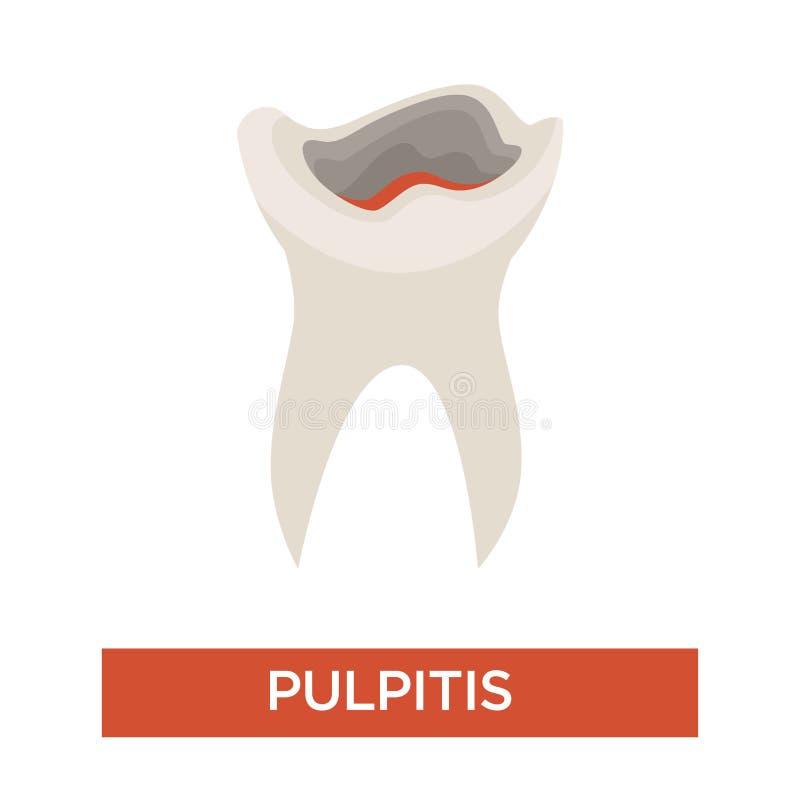 Tandläkekonst för etapp för karies för tandförfall och tand- vård- pulpitis stock illustrationer