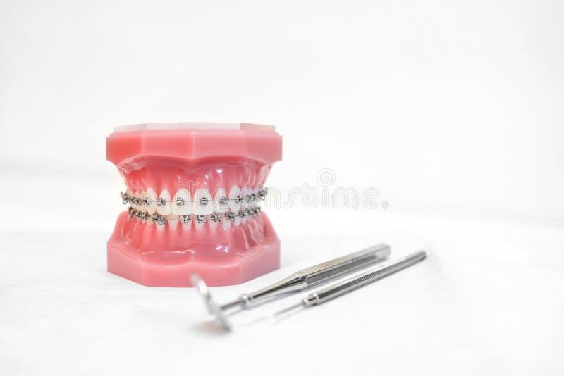 Tandmodel met steunen - Tanden orthodontisch tandmodel met tandsteunen royalty-vrije stock afbeeldingen