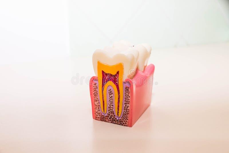 Tandmodel zonder bederf, tandbederf in tandarts` s bureau Gezond tandenconcept de ruimte van Copy van de kinderen` s tandarts stock foto's