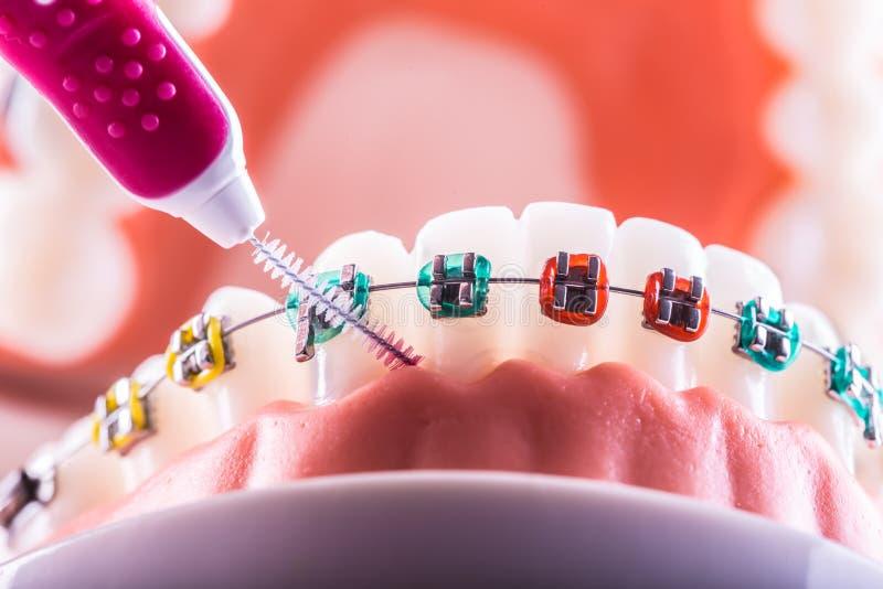 Tandmodell från tandklammerparenteser med tandtandborste arkivbild