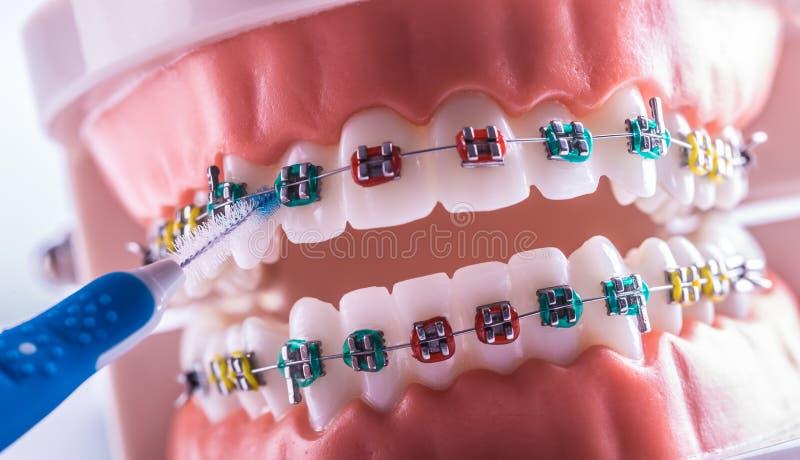 Tandmodell från tandklammerparenteser med tandtandborste royaltyfria bilder