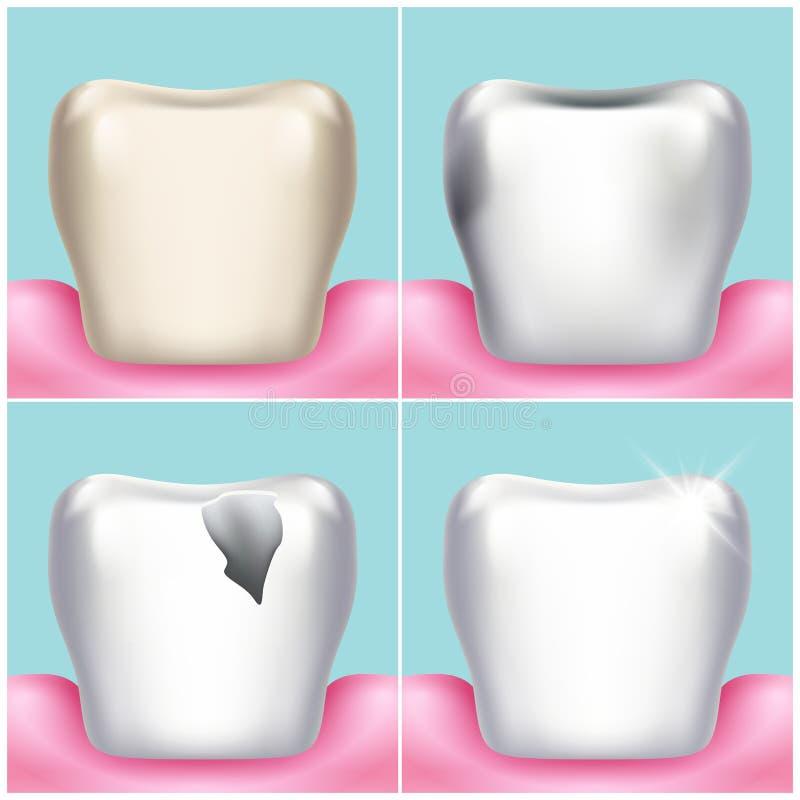 Tandproblemen, bederf, plaque en gomziekte, gezonde tand vectorillustratie stock illustratie