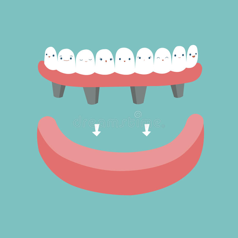 Tandproteser, tänder och tandbegrepp av tand- stock illustrationer