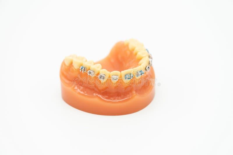 Tandprotesmodell för medicinskt utbildningslappbegrepp och utbildning Vit bakgrund som v?rd- begrepp f?r bakgrund med kopieringsu arkivfoton