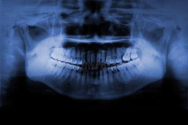 Tandröntgenstråle arkivbilder