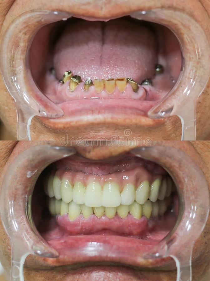 Tandreparatie - volledige tandbrug op tandimplants stock fotografie