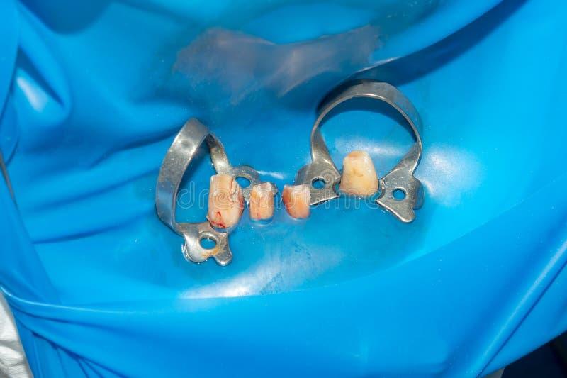 Tandrestauratie van rotte wortels van de tanden met ceramische kronen gegoten postentandheelkunde royalty-vrije stock foto