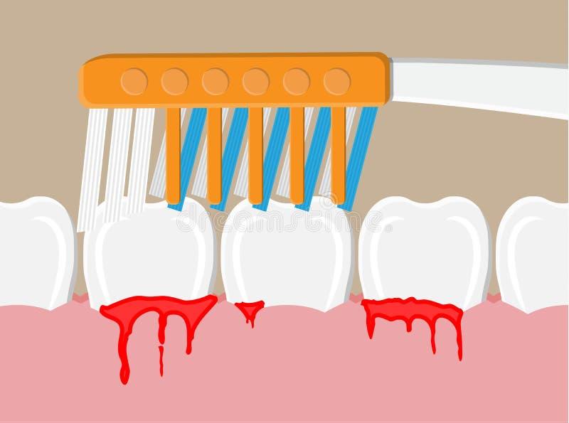 Tandrot- sjukdom, blödande gummin vektor illustrationer