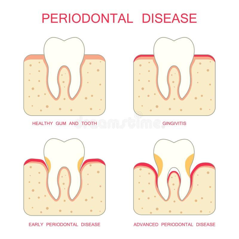 Tandrot- sjukdom för tand, vektor illustrationer