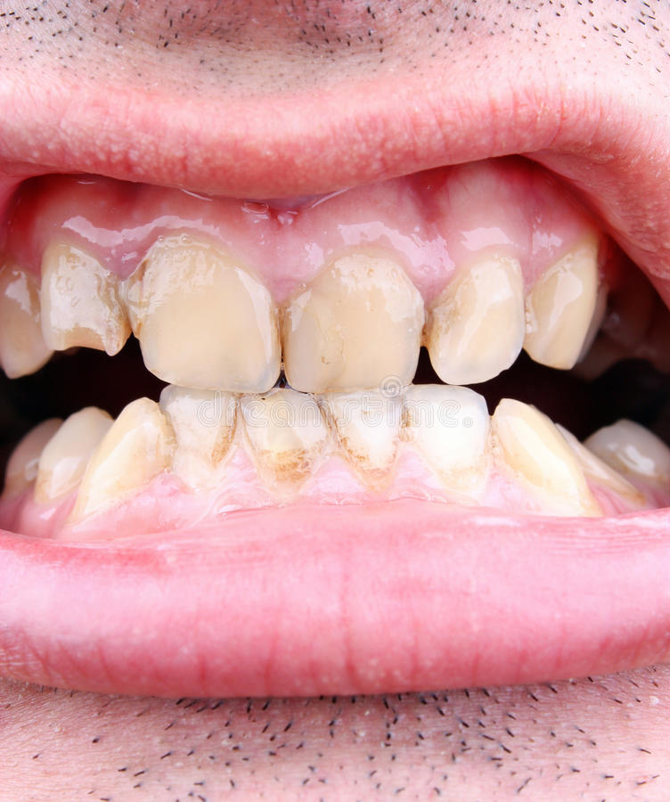 Tandsten- och tandförfall royaltyfri bild