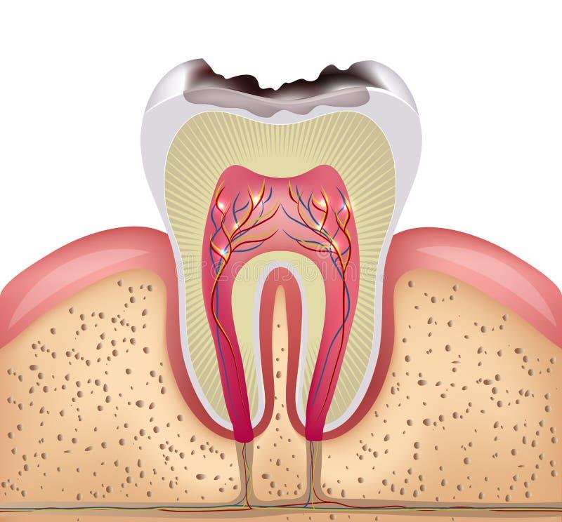 Tandtvärsnitt med tand- karies royaltyfri illustrationer